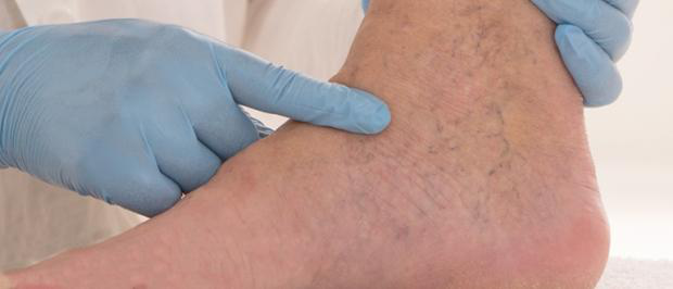 Dr. Matt Hutton's Guide to Varicose Veins