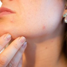 Have You Tried This Solution for Your Acne Scars?